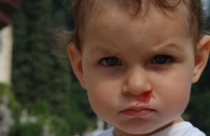 Je me souviens que je saignais du nez après la piscine